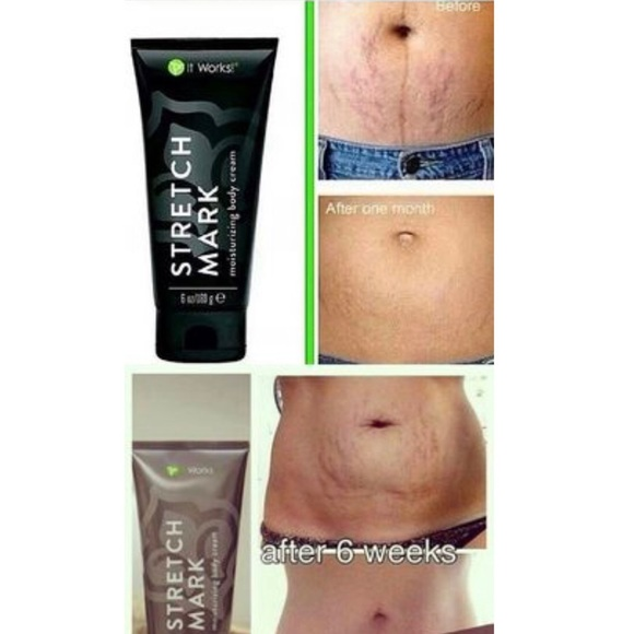 Other Stretch Mark Cream Poshmark